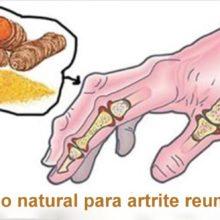 Os 5 melhores remédios naturais para artrite reumatoide